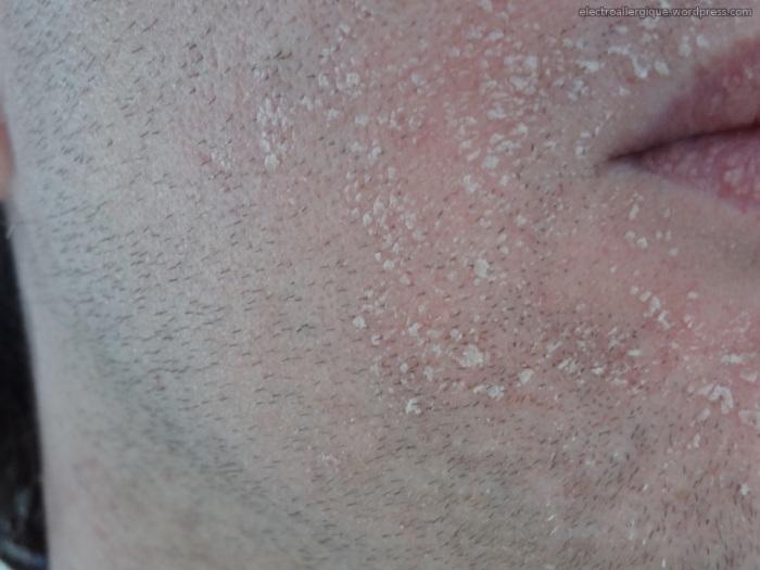 peau morte apparaissant après les rougeurs (exposition CPL)