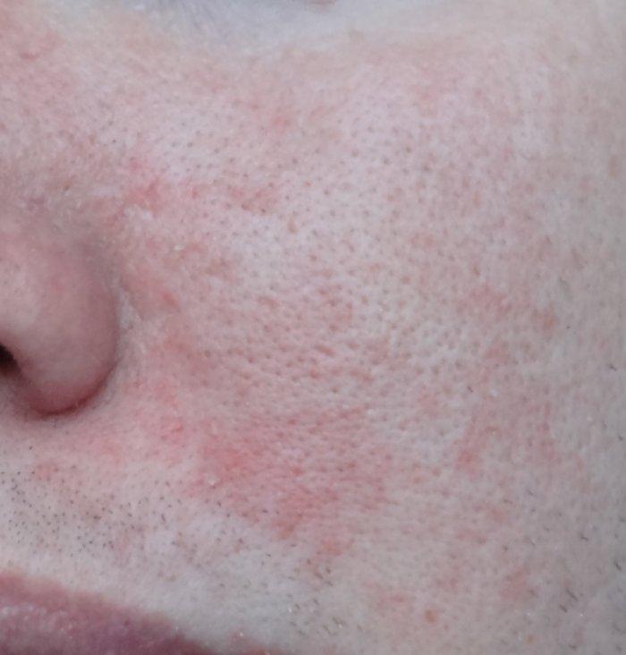 Allergie de peau suite à l'exposition de mon portable